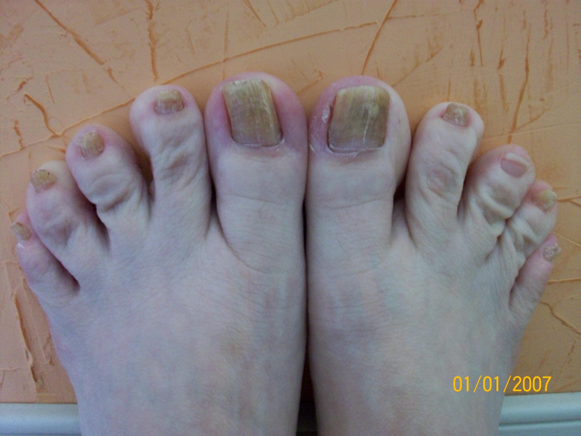 Желтые ногти, вызванные грибком Toenail