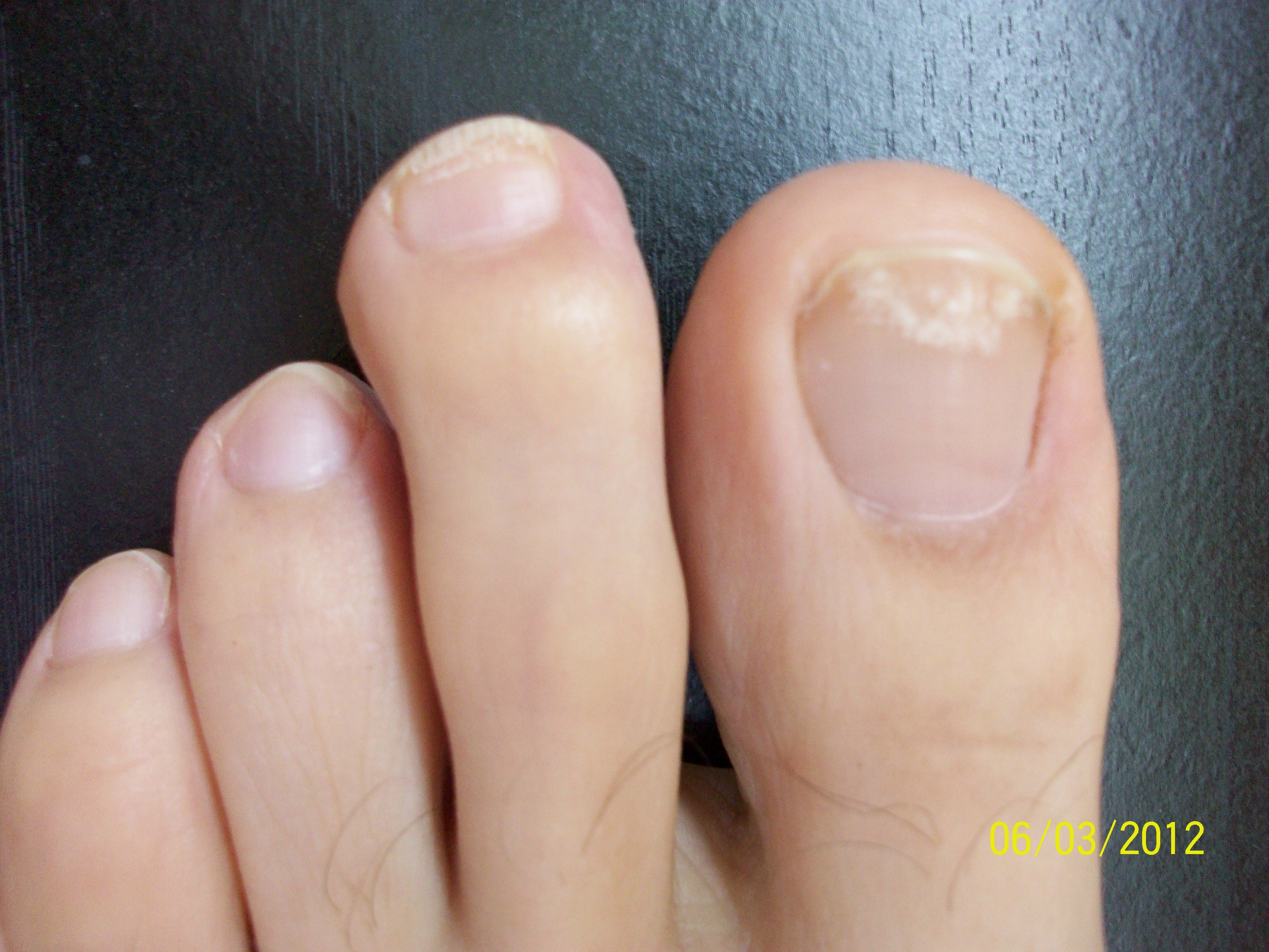 Get Rid of Yellow Toenails | Clear Up Nail Fungus For Good!